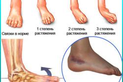 brud på ydersiden af foden